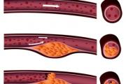 Arteriosklerose-Screening